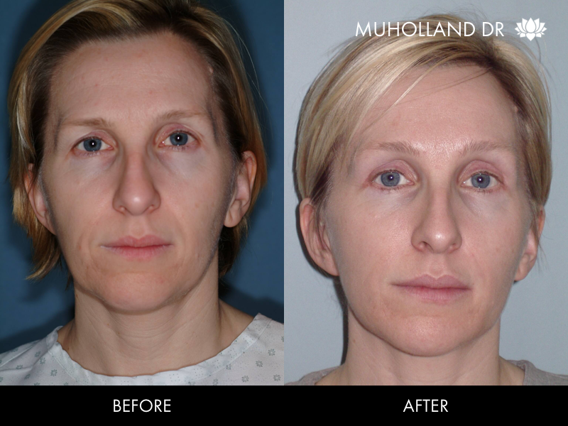 ThreadLift - Before and After Gallery – Photo 36