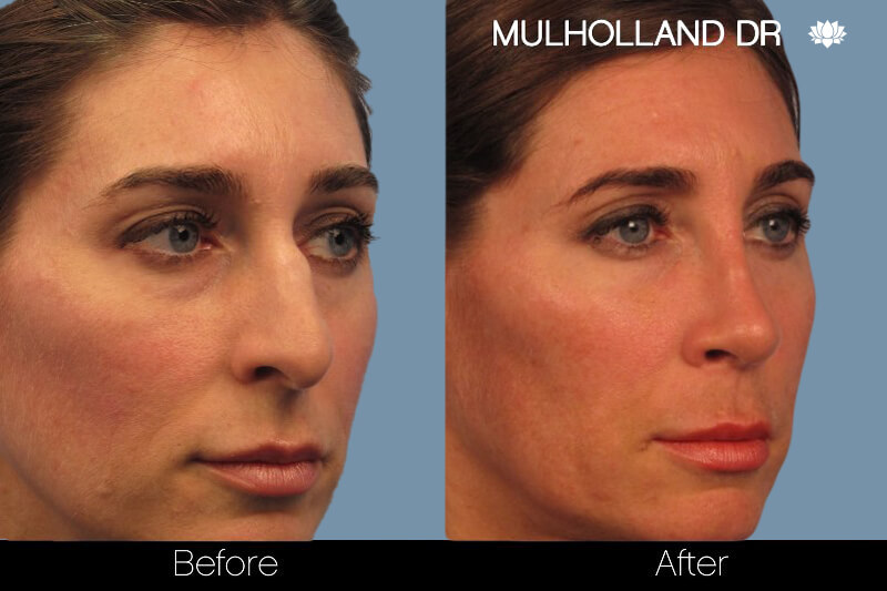 Rhinoplasty - Before and After Gallery – Photo 3