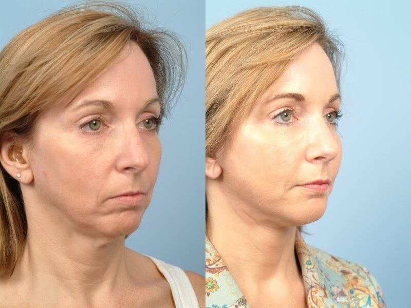 ThreadLift - Before and After Gallery – Photo 39