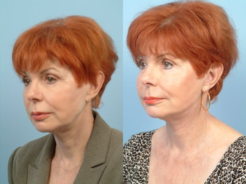ThreadLift - Before and After Gallery – Photo 44