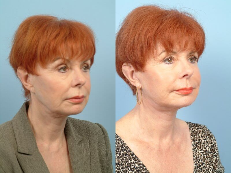ThreadLift - Before and After Gallery – Photo 45