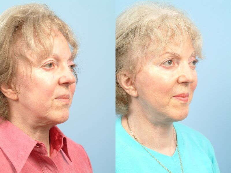 ThreadLift - Before and After Gallery – Photo 47