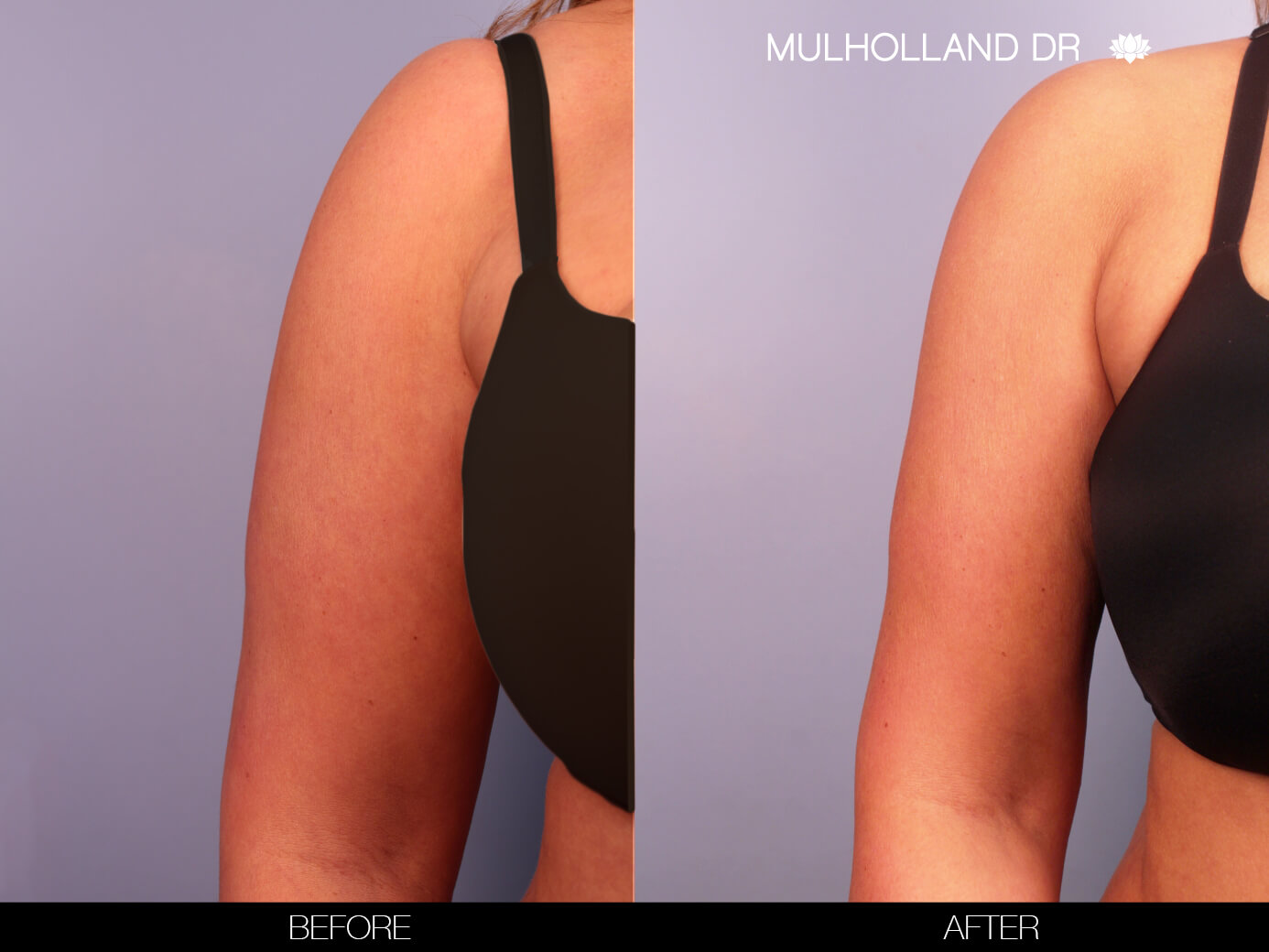 Arm Lift - Before and After Gallery – Photo 5