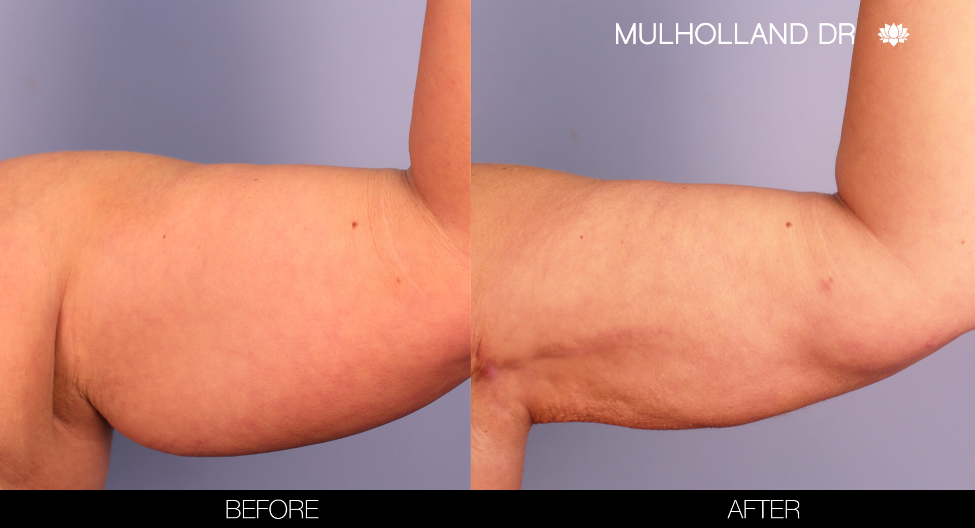 Arm Lift - Before and After Gallery – Photo 6