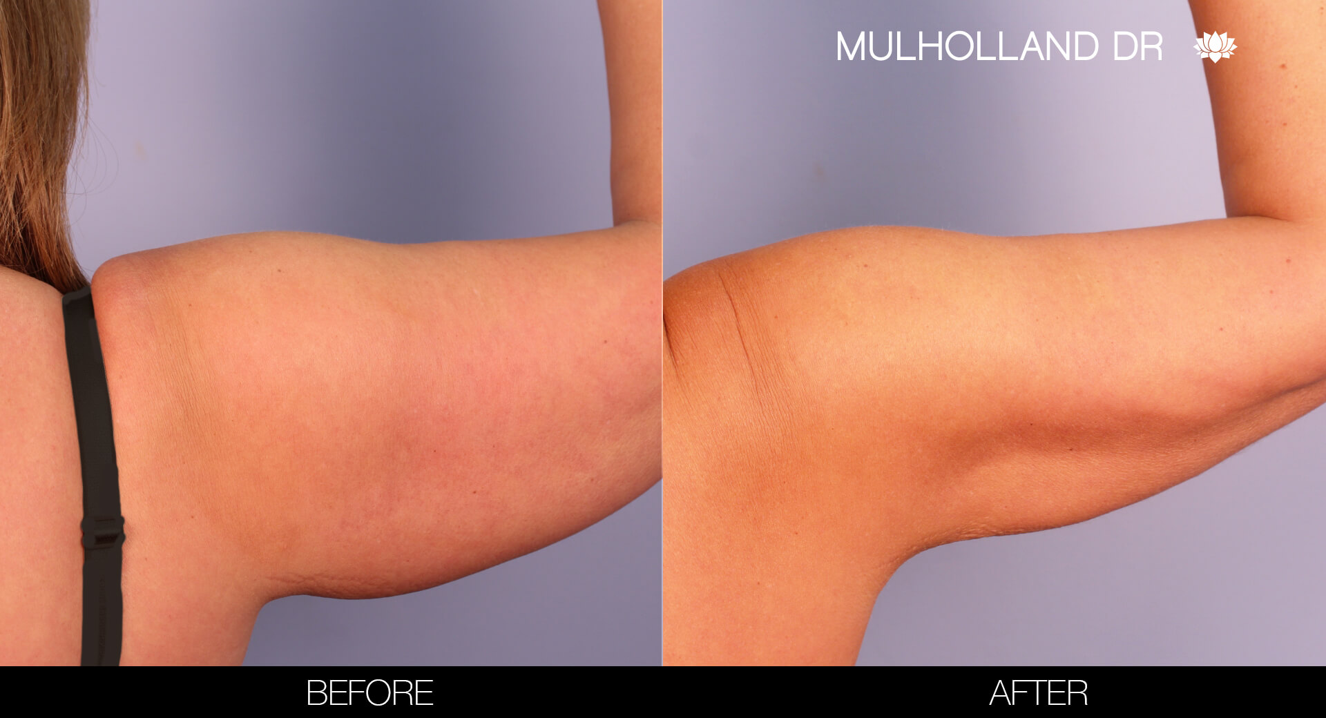 Arm Lift - Before and After Gallery – Photo 8