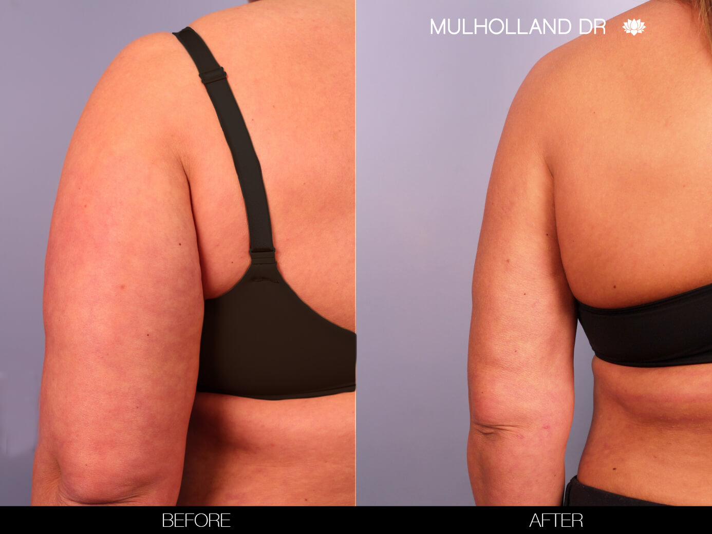 Arm Lift - Before and After Gallery – Photo 9