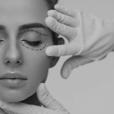 surgeon making incision marks around eye